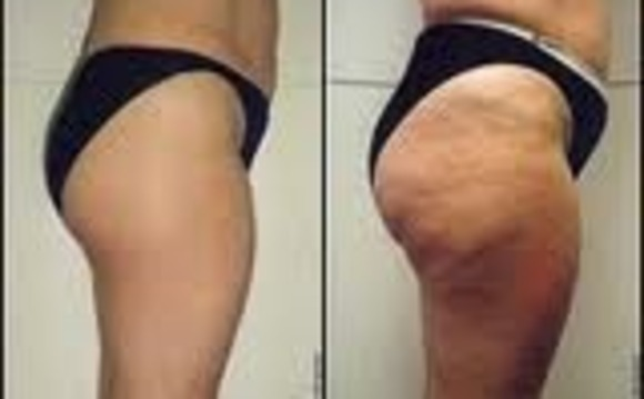The BEST Body Treatments In New Jersey Buy 3 And Get 10 Off Results Will Amaze You Cellulite TreatmentsENDERMATIC GX 99
