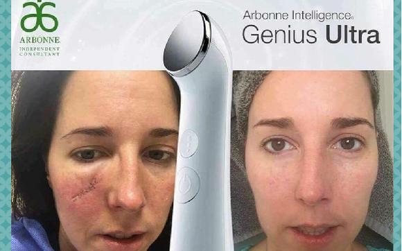 Arbonne Genius Ultrasound By Arbonne International Holly Taylor In