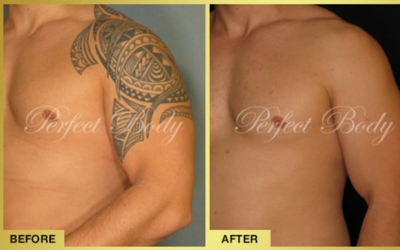 Laser Tattoo Removal Long Island by Perfect Body Laser and ...