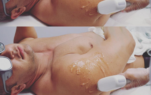 Laser Hair Removal for Men by Infinity Laser Spa in New York, NY