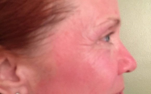 Microneedling Treatments by About Face Esthetics, Inc  in