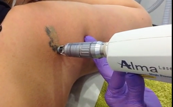 Tattoo Removal by ReSolutions Med Spa and Chiropractic: Lesa Ansell ...