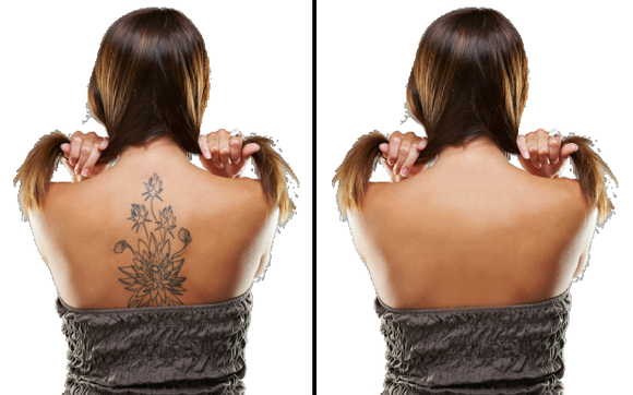 Laser Tattoo Removal by Vanish, Inc. in Williamsport, PA - Alignable